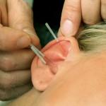 Akupunktur_SSp06.JPG