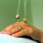 Akupunktur_SSp13.JPG